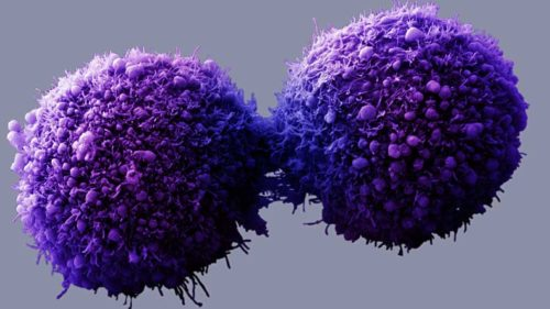 Antibody discovered that can help kill cancer cells emerges