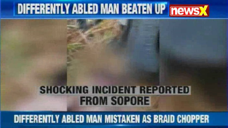 Mob thrashes differently-abled man, almost sets him ablaze