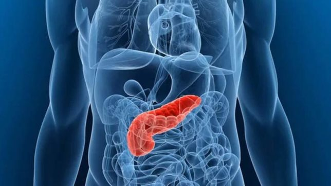 Pancreatic cancer survival linked to 4 genes: Study