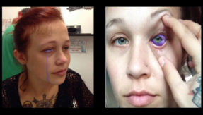 Canadian model goes partially blind after tattooing eyeball