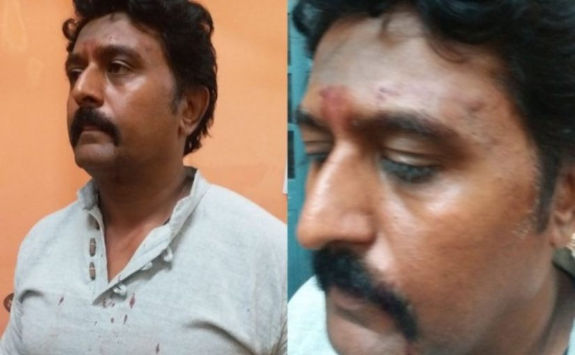 Kannada actor Komal Kumar gets beaten up, assaulted in road rage, see video